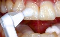 フッ素で歯質強化