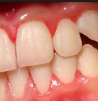 歯肉炎・歯周病