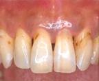 むし歯・歯髄炎