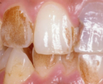 歯の黄ばみ・黒ずみ